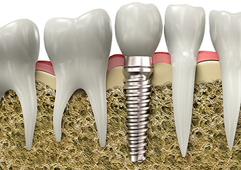 Dental Implants, Brantford Dentist